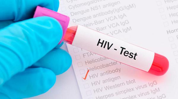 HIV giai đoạn đầu có chữa được không?