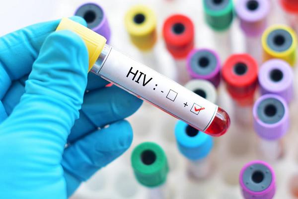 HIV và những thông tin mọi người cần phải biết